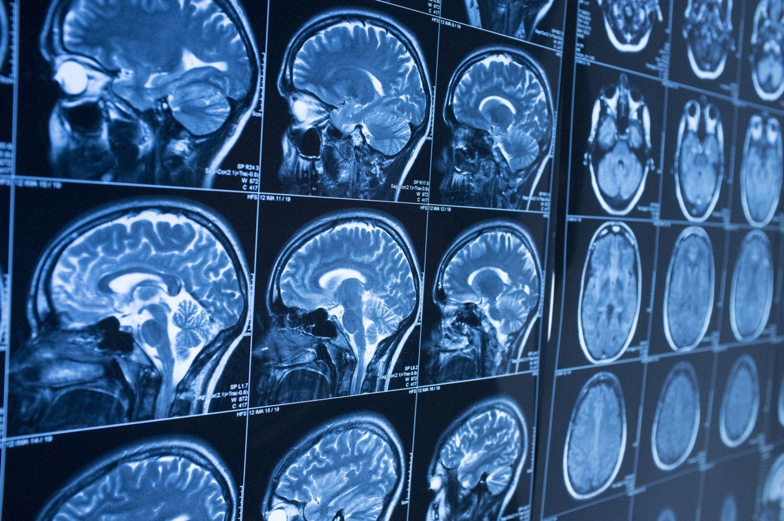 人工智能技术新技能 可提前10年发现老年痴呆症